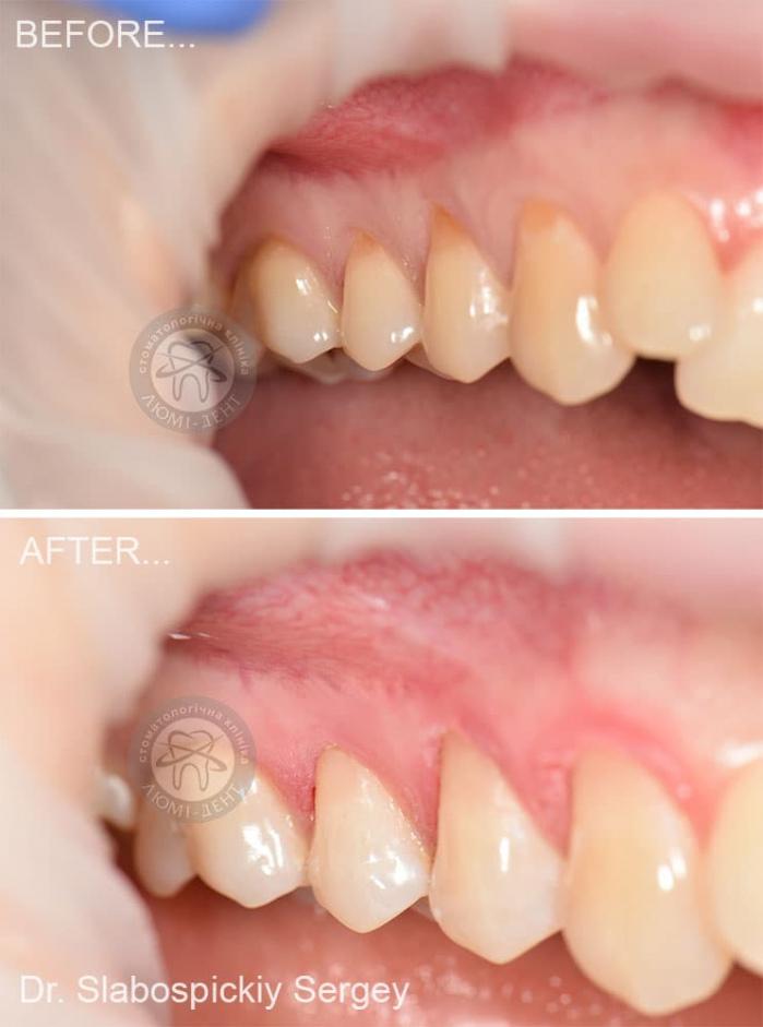 Гіперстезія емалі зубів фото Київ Люмі-Дент