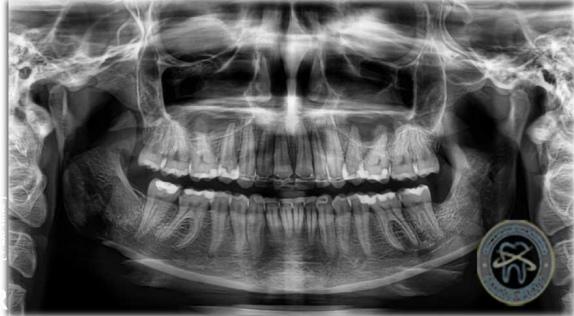 Панорамний рентгенівський знімок щелеп ЛюміДент