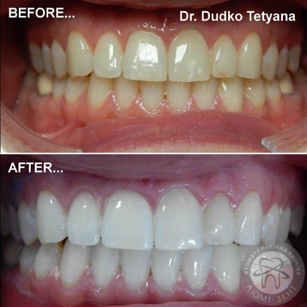 Tone changes of teeth whitening