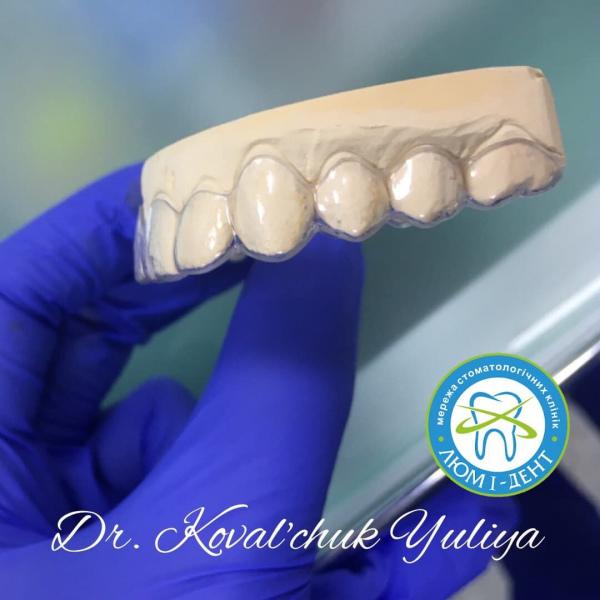 Вирівняти криві зуби без брекетів фото Київ Люмі-Дент
