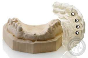 Видео имплантации зубов фото Люмидент