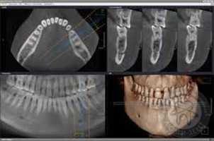 Как ставят зубные импланты видео видео Люми-Дент