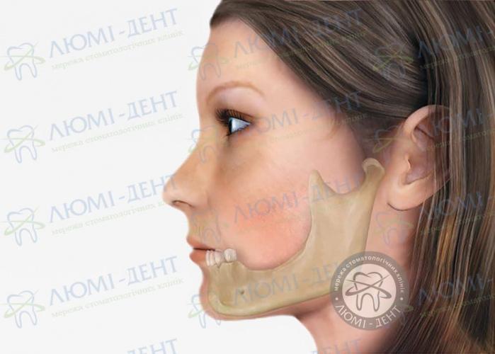 Костная пластика имплантация зубов Киев фото Люми-дент