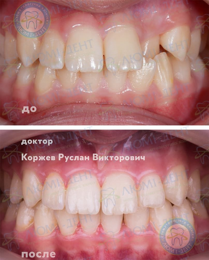 Исправление неправильного прикуса зубов фото Люми-Дент