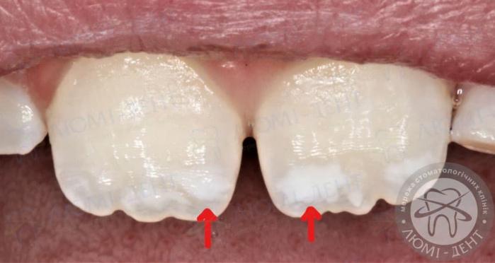 білі плями на зубах у дитини фото ЛюміДент