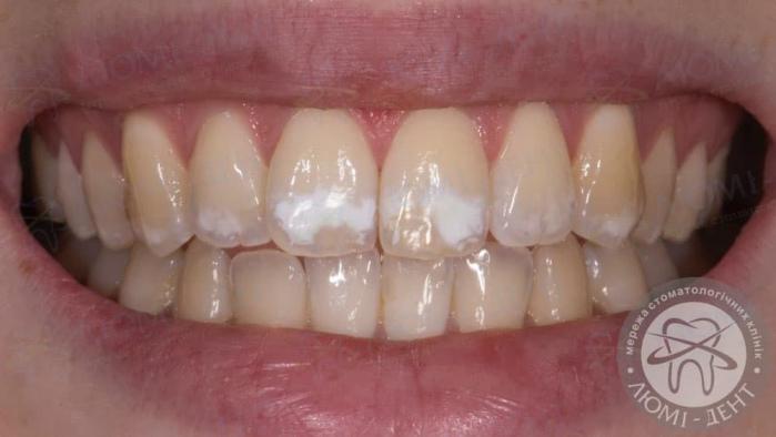 білі плями на зубах фото ЛюміДент