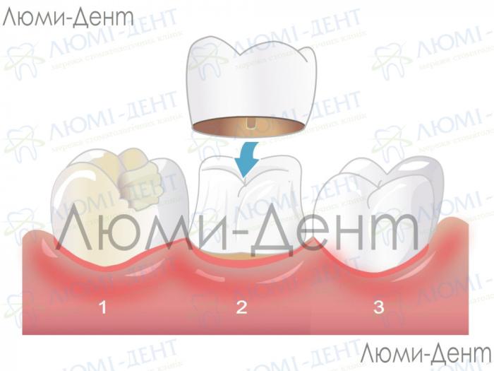 болит зуб под коронкой фото ЛюмиДент