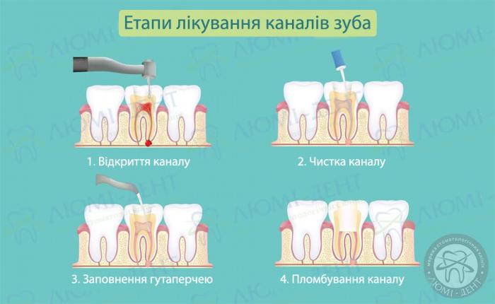 як зняти зубний біль після чистки каналів фото ЛюміДент