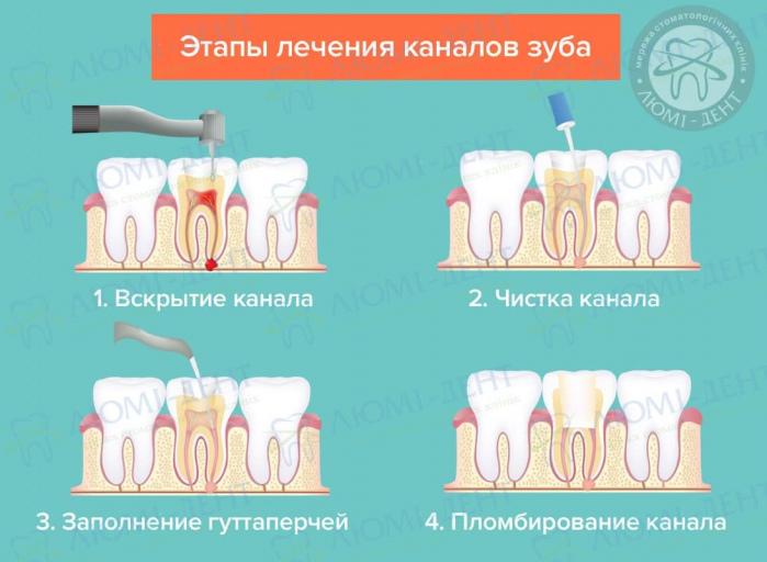 как снять зубную боль после чистки каналов фото ЛюмиДент