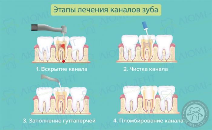 Чистка каналов зуба больно или нет фото ЛюмиДент