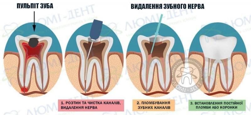 Чи боляче видаляти нерв з зуба після миш'яку фото ЛюміДент