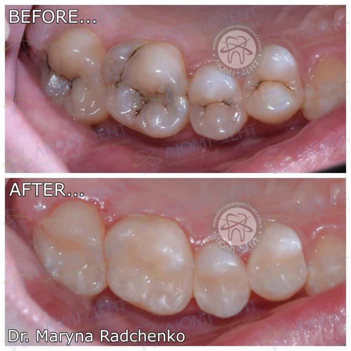 Чи боляче видаляти нерв зуба фото ЛюміДент