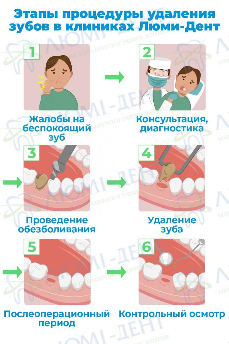 Больно ли удалять зуб с уколом фото ЛюмиДент