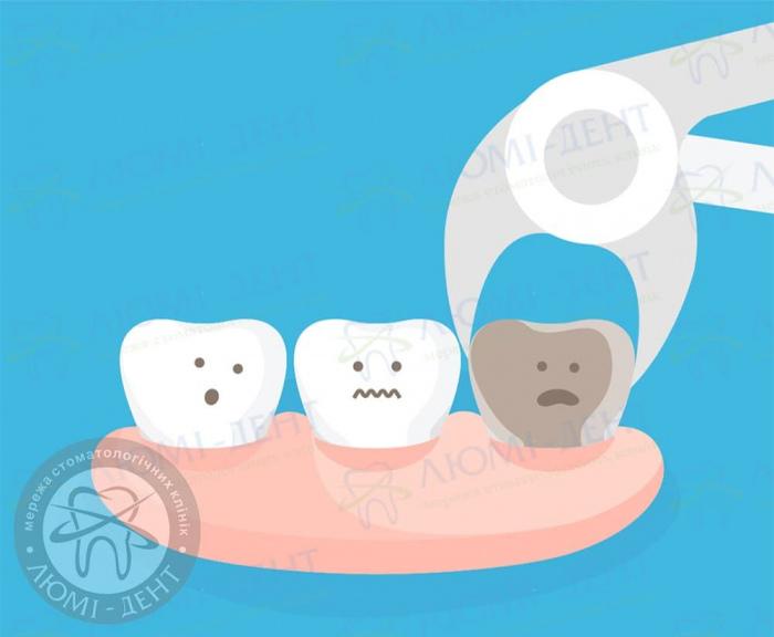 Больно ли удалять зуб фото ЛюмиДент