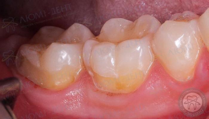Боль в зубе от сладкого фото ЛюмиДент