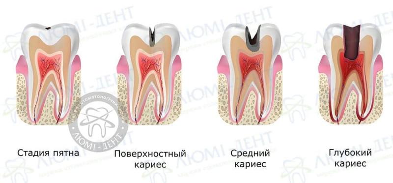 Болит зуб от сладкого фото ЛюмиДент