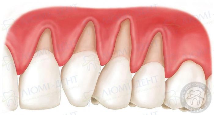 Почему болят зубы от сладкого фото ЛюмиДент