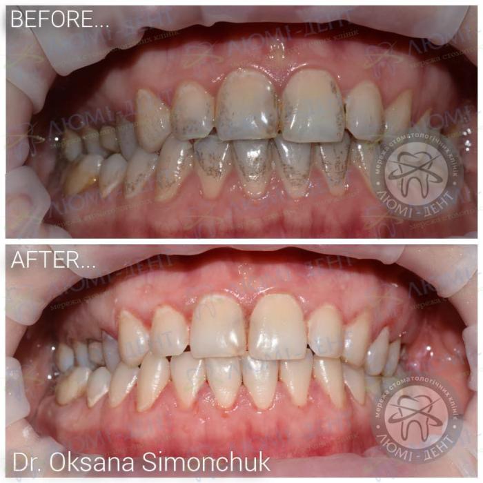 Черные пятна на зубах фото ЛюмиДент