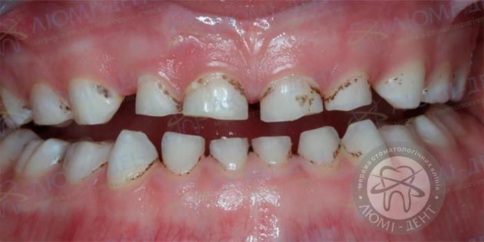 Темные пятна на зубах фото ЛюмиДент