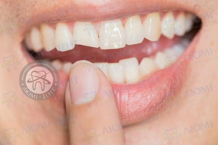 Сломался зуб фото ЛюмиДент