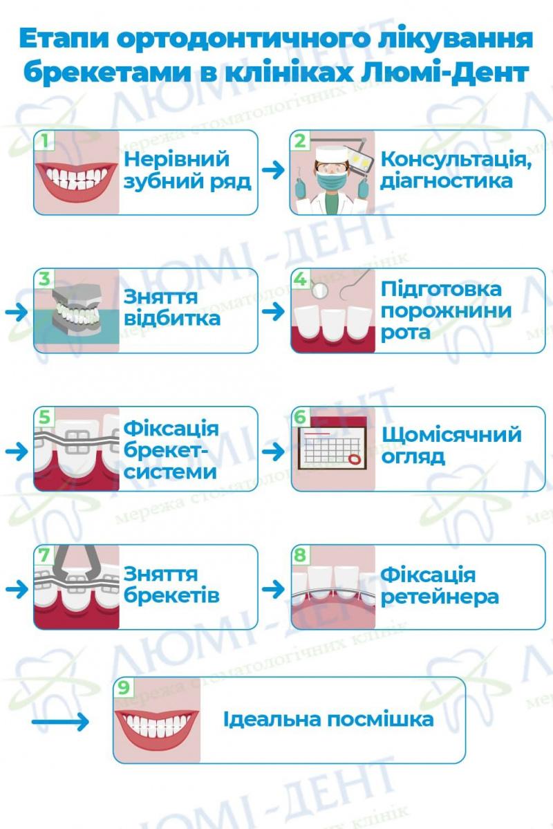 Як встановлюють брекети на зуби фото ЛюміДент