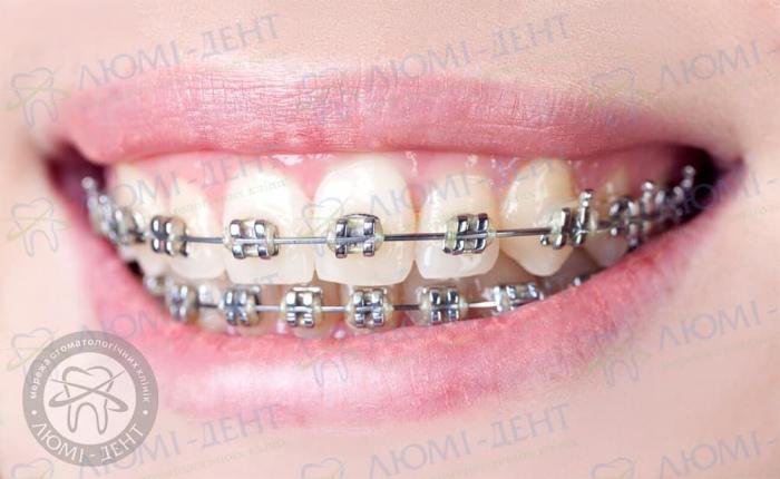 Як ставлять брекети на зуби фото ЛюміДент