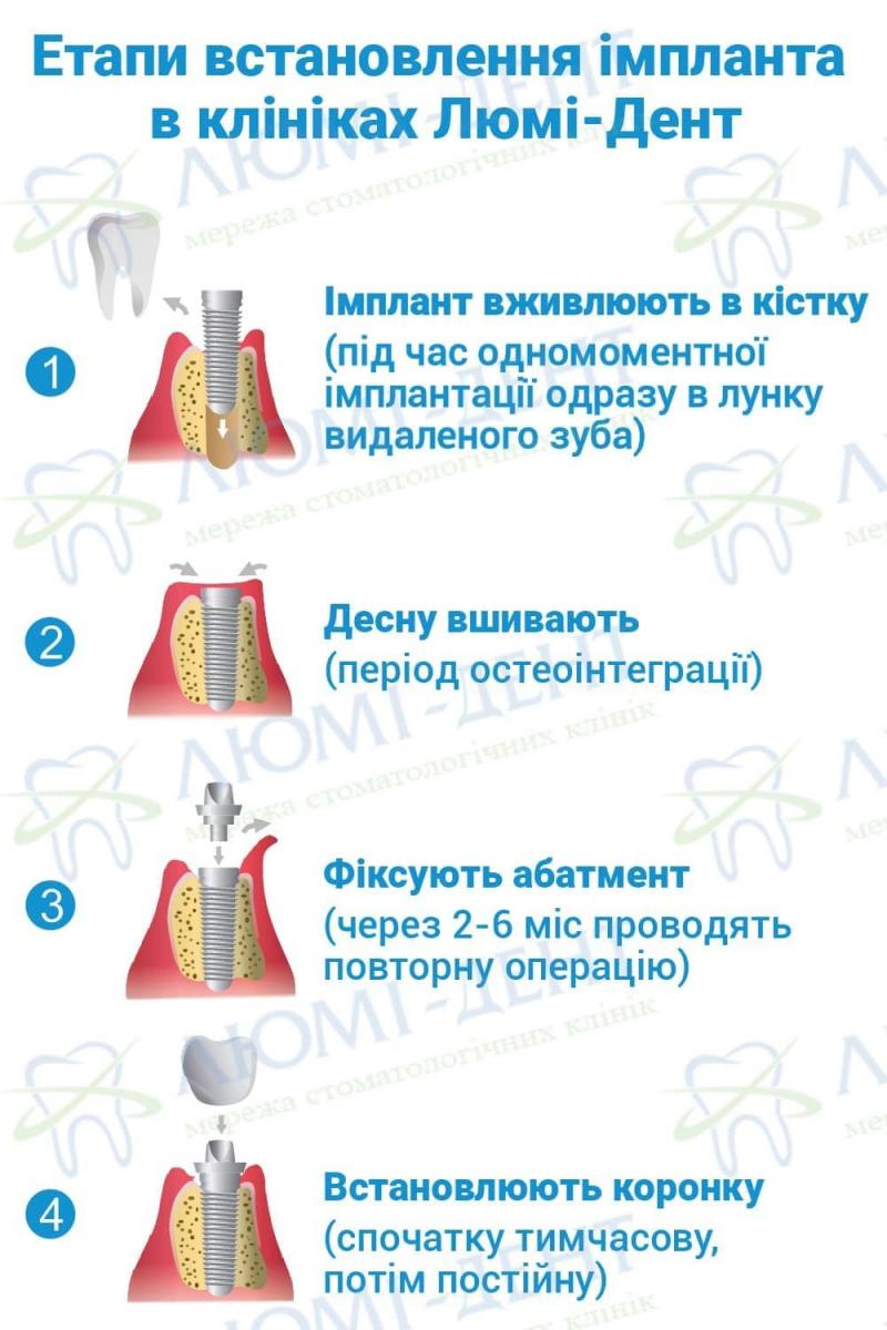 Двоетапна імплантація зуба фото ЛюміДент