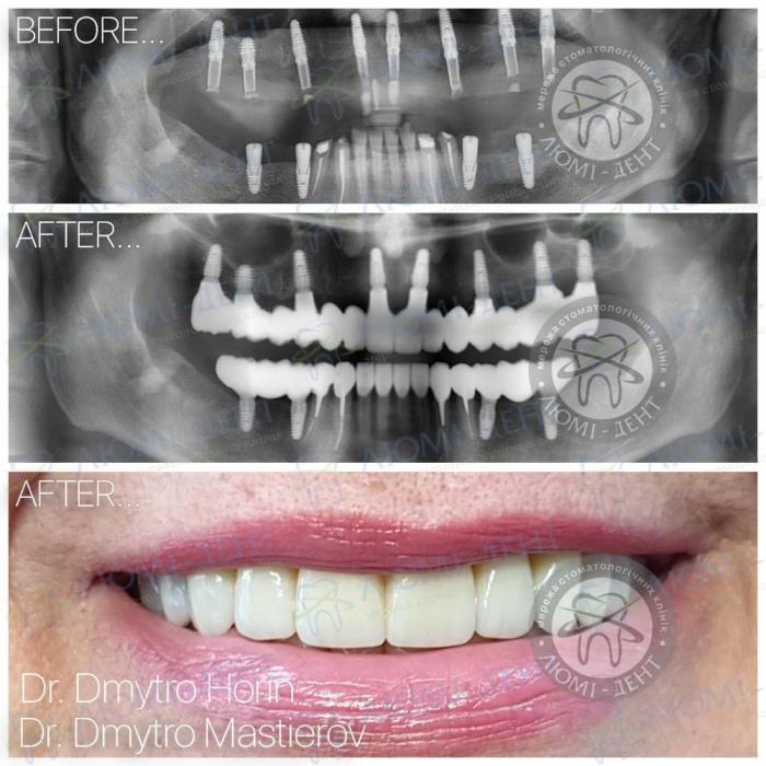 Двоетапна імплантація зубів фото ЛюміДент