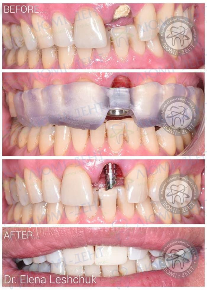 Недоліки експрес імплантації зубів фото ЛюміДент