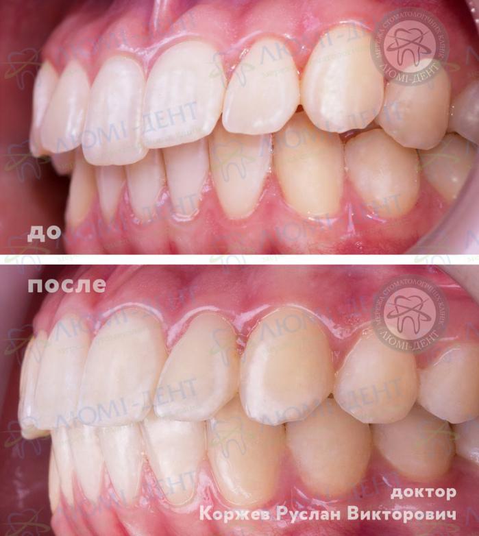 Елайнери на зуби фото ЛюміДент