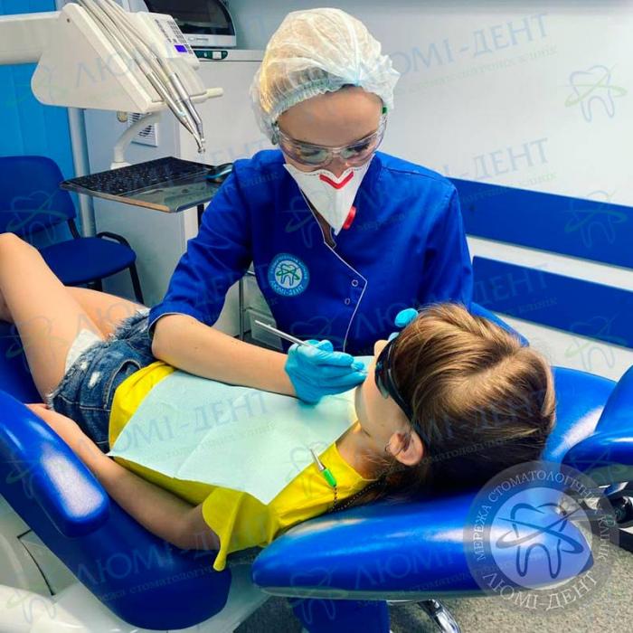 Елайнеры для зубів фото ЛюміДент