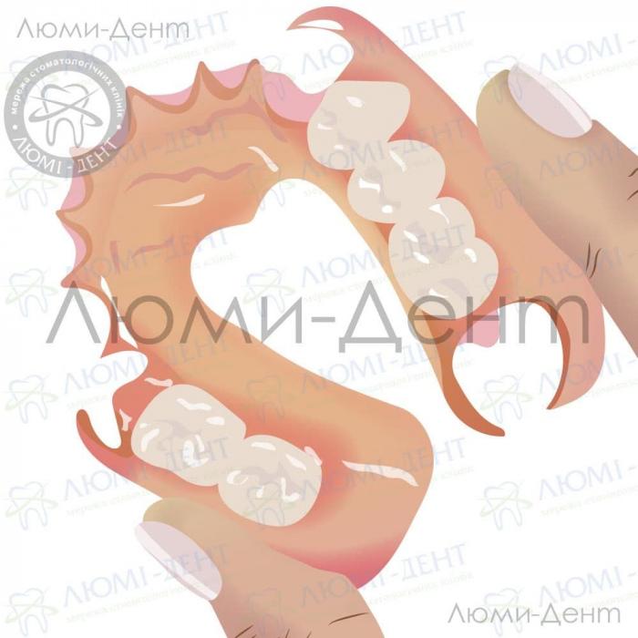 иммедиат протезы изготовление фото ЛюмиДент