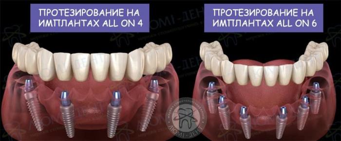 Имплантация all on 4 фото ЛюмиДент