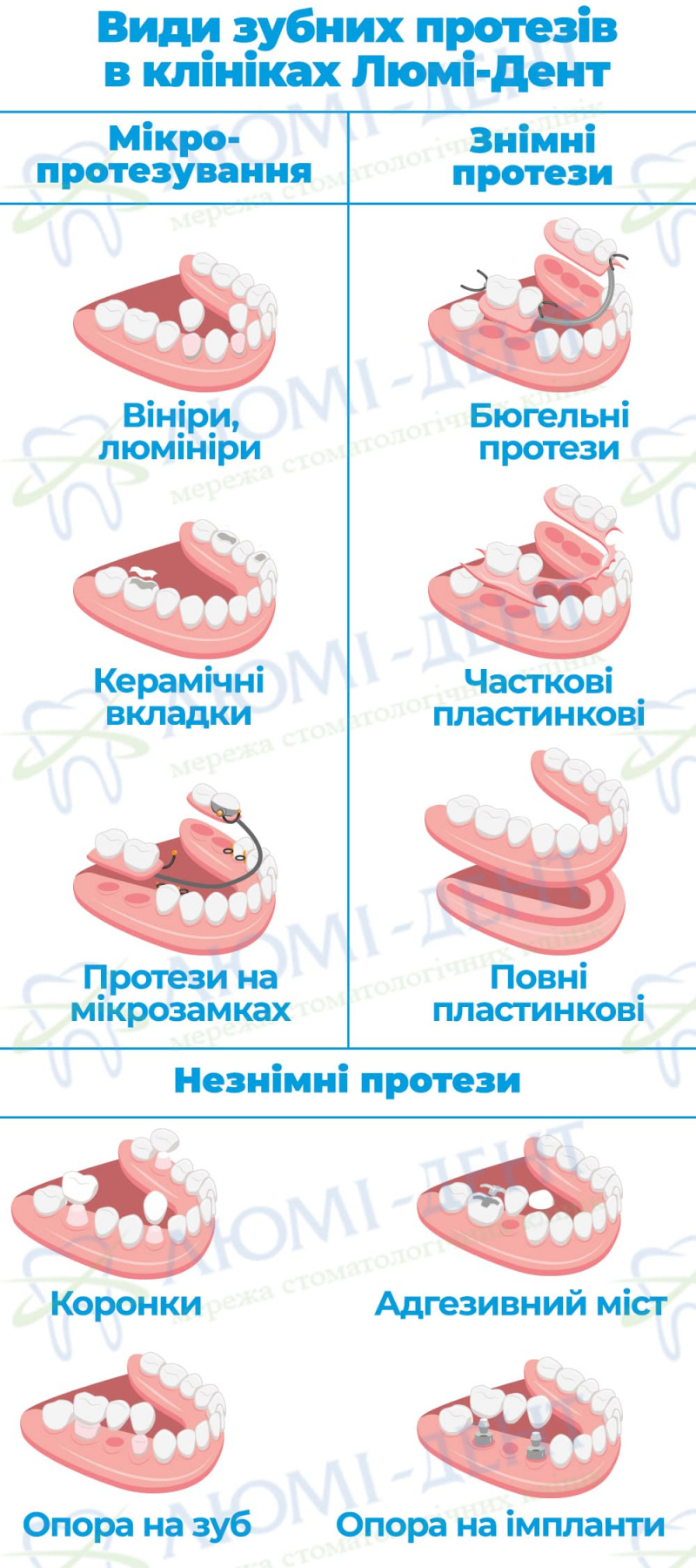Консоль на зуби фото ЛюміДент