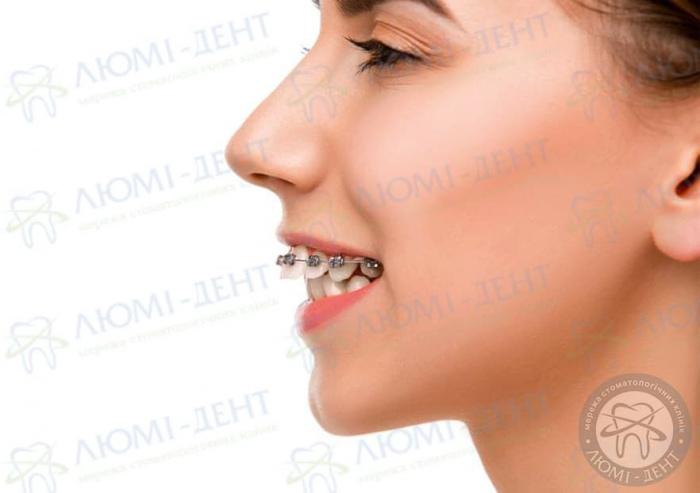 Протрузия зуба фото ЛюмиДент