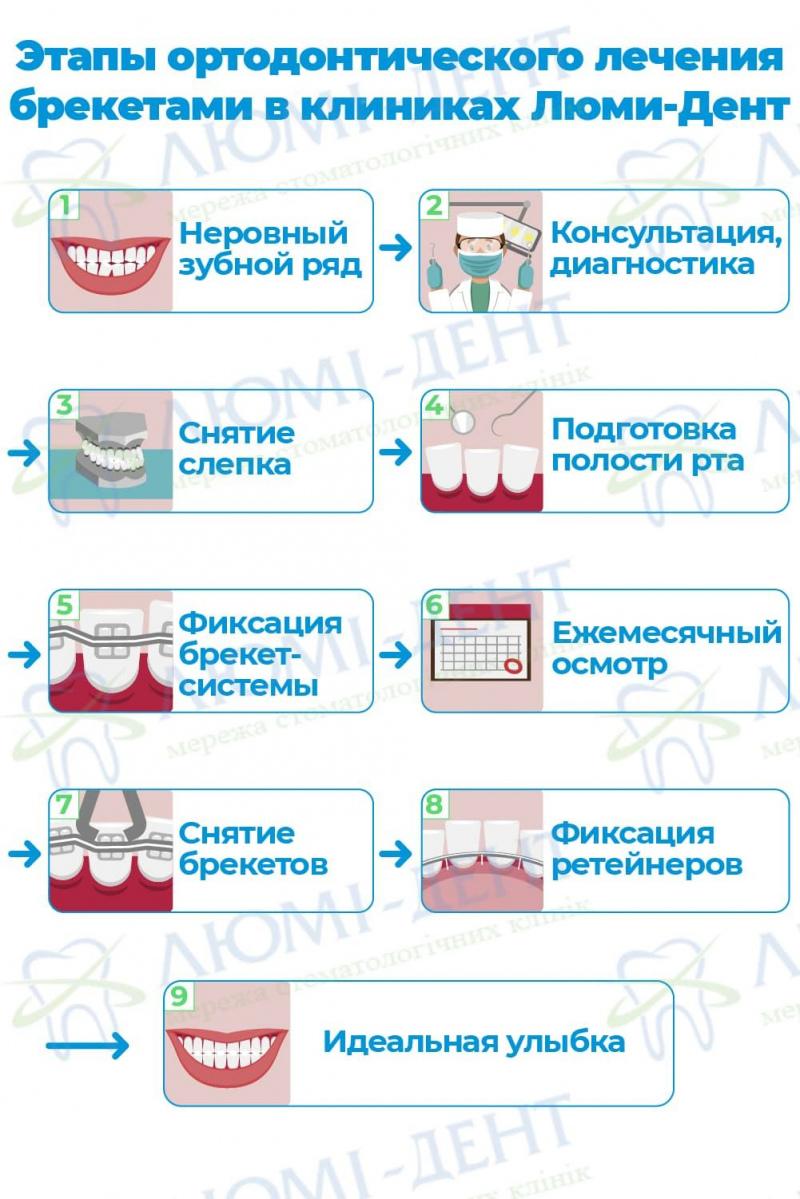 Протрузия зубов что это такое фото ЛюмиДент
