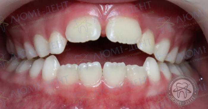 Протрузия зубов это фото ЛюмиДент
