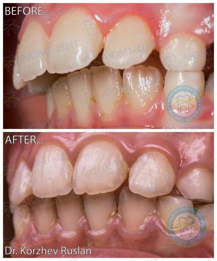 Протрузия зубов после брекетов фото ЛюмиДент