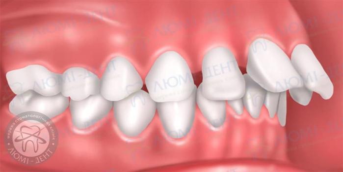 Протрузия зубов фото ЛюмиДент