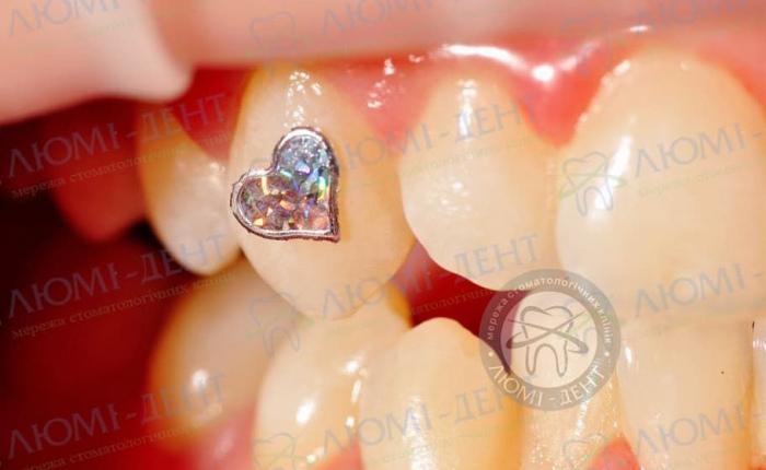 Скайсы на зубы фото ЛюмиДент