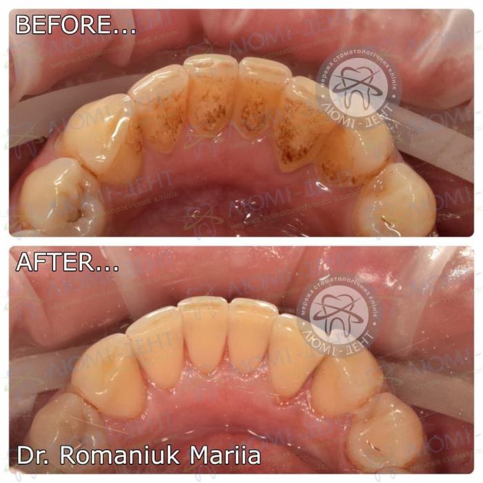 Як проходить ультразвукова чистка зубів фото ЛюміДент