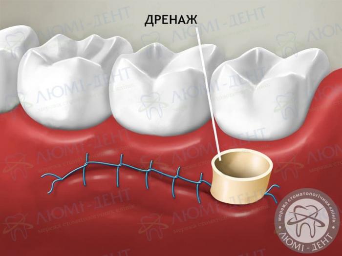 дренаж в стоматології фото ЛюміДент