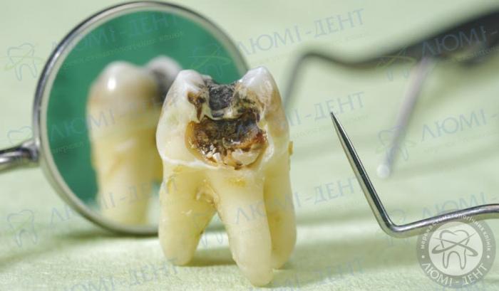 гнилі зуби фото ЛюміДент