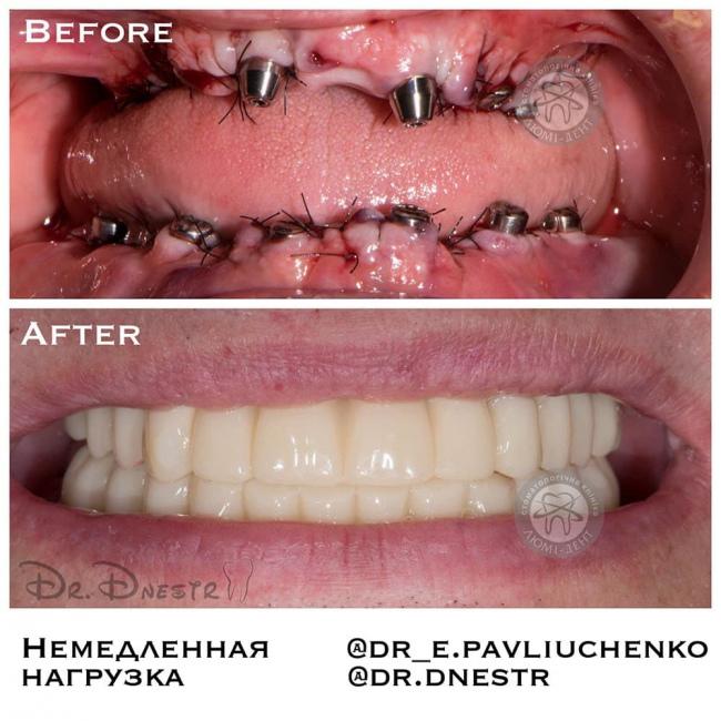 Приживаемость имплантов зубов фото Люми-Дент