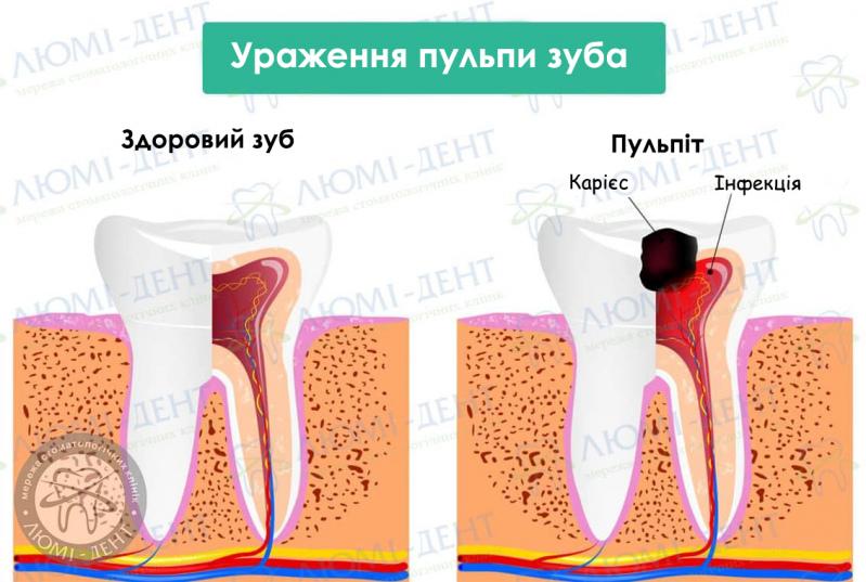 Нерв зуба фото ЛюміДент