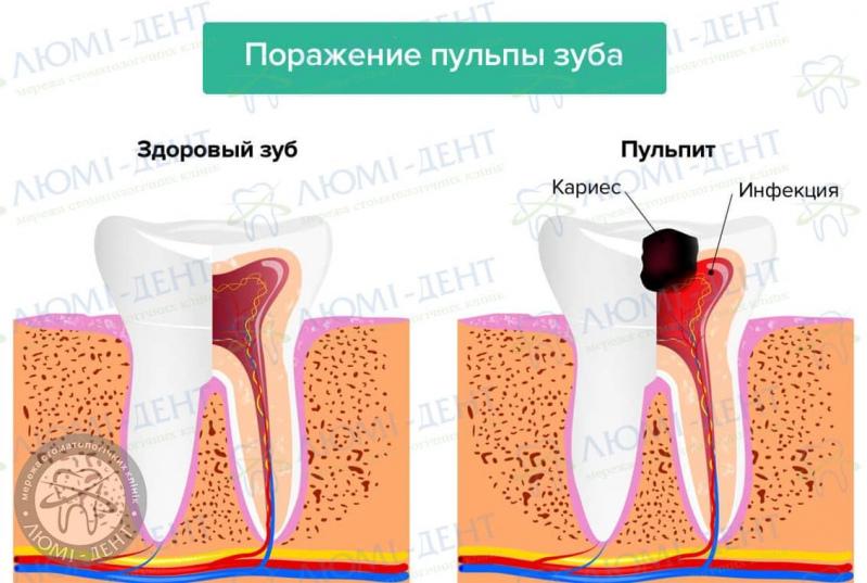Нерв зуба фото ЛюмиДент