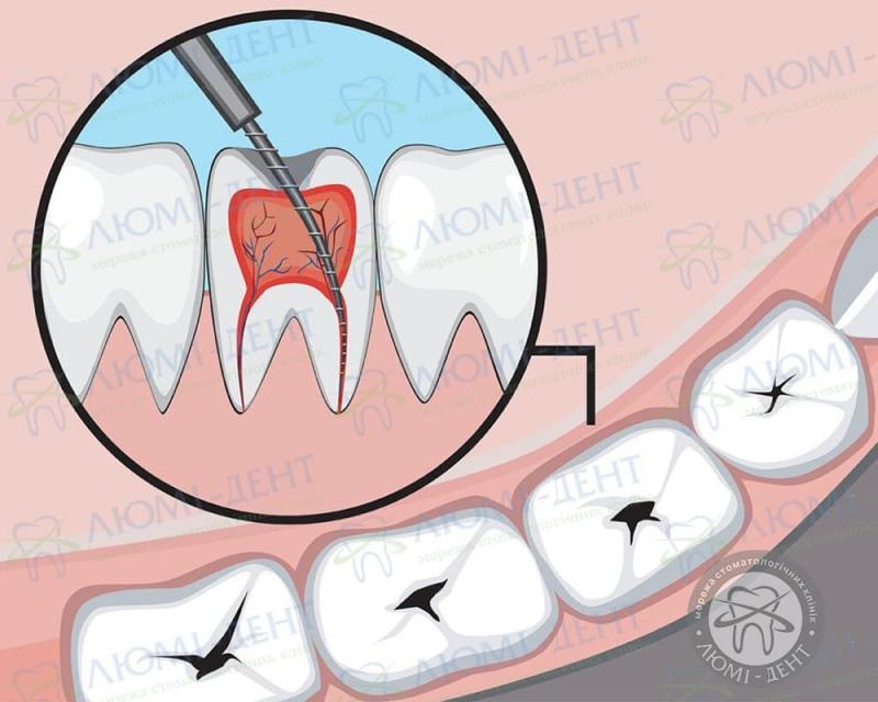 Видалення нерва зуба фото ЛюміДент