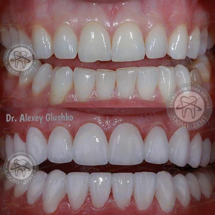 как выравнивают зубы без брекетов фото ЛюмиДент
