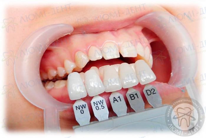 способы выровнять зубы без брекетов фото ЛюмиДент