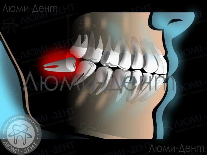 як рвуть зуб фото ЛюміДент